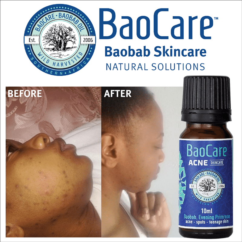 BaoCare Acne SkinCare works wonders!